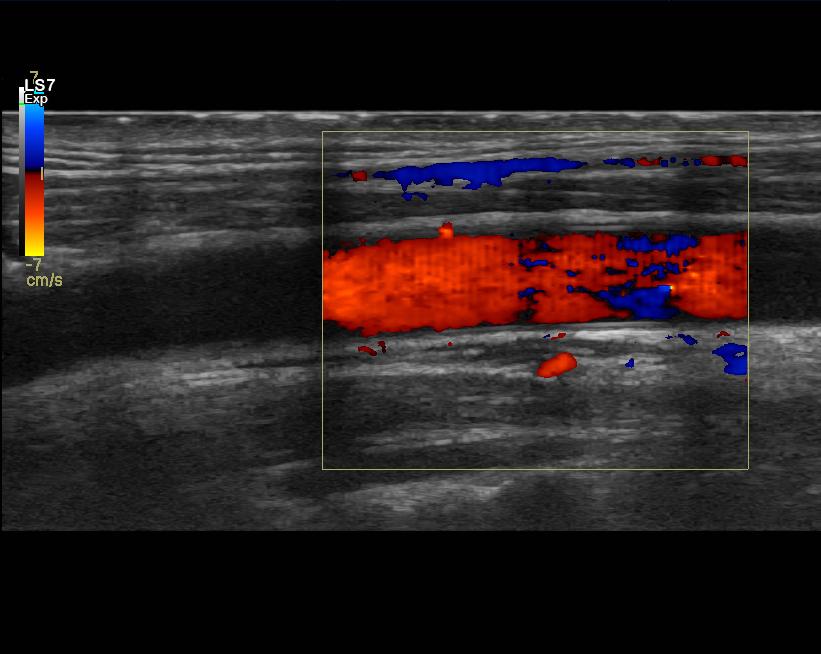 kaulavaltimon ultraäänikuva