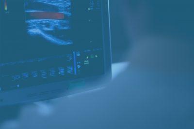 laskimotukosten ultraäänitutkimus