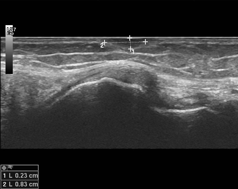 Pinnallinen patti ultraäänessä