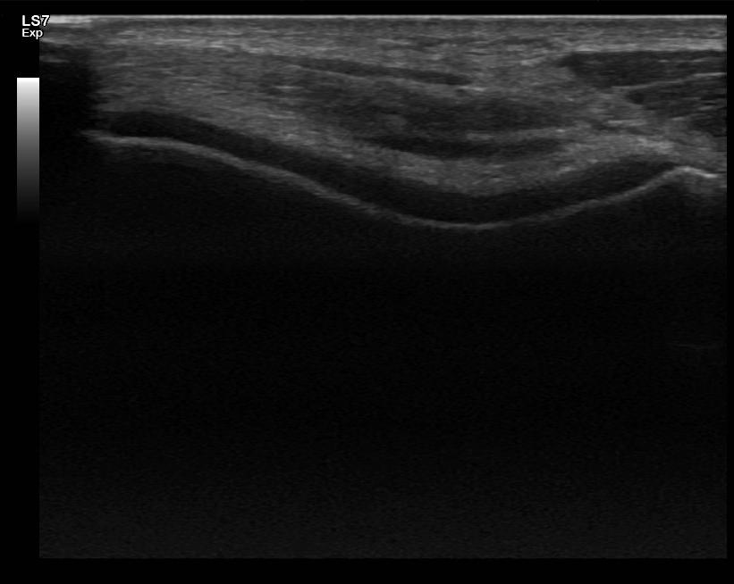Polven rustojen ultraääni