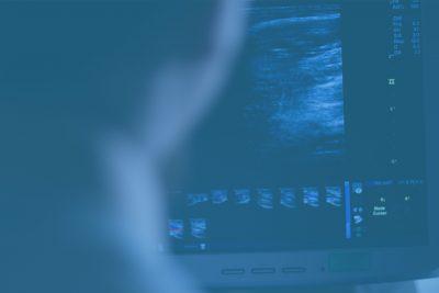 Ultraäänitutkimukseen ilman lähetettä
