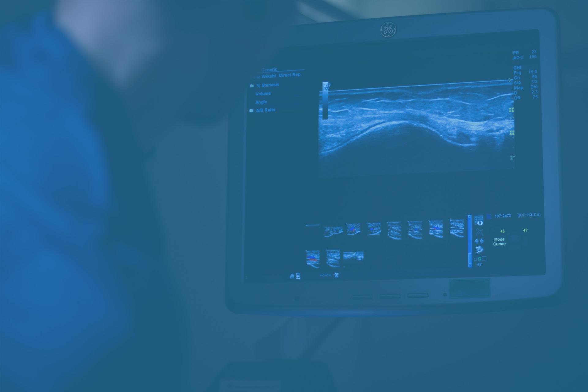 Usein kysytyt kysymykset ultraäänestä