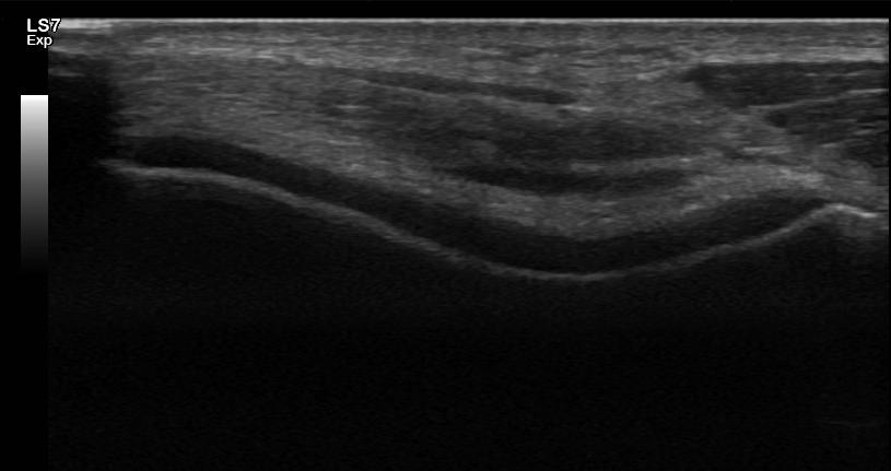 Polven rustojen arviointi ultraäänellä